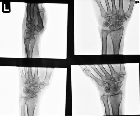 thumb x ray: X-ray hand images