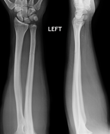 guy person: fracture shaft of radius  ulnar bone, x-ray film