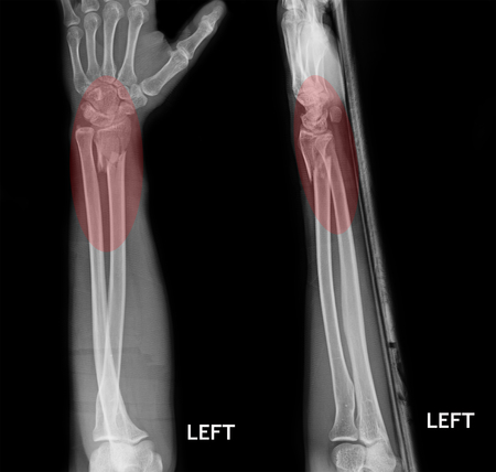 broken wrist: fracture shaft of radius  ulnar bone, x-ray film