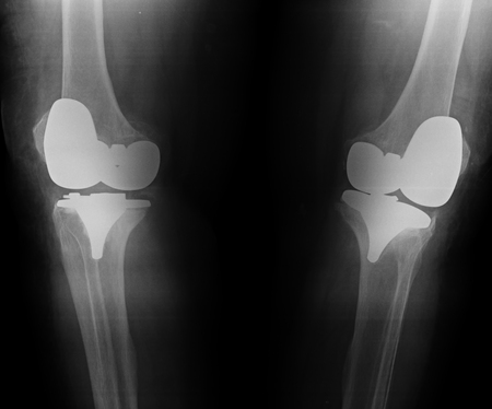 knee with total replacement x-ray image on black background Stock Photo