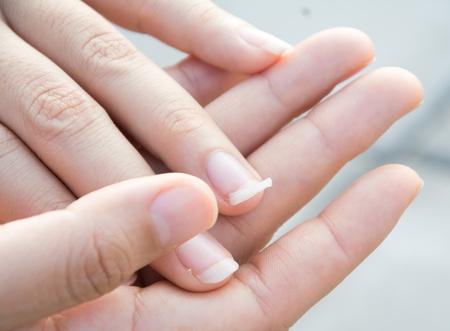 깨진 손톱 이미지