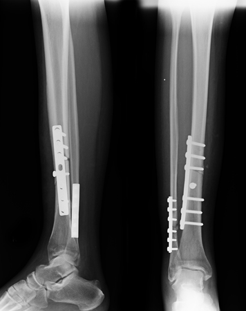 X-rays image of leg fracture patients Stock Photo
