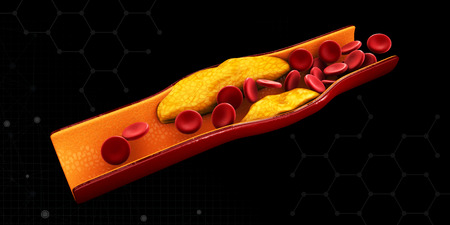Illustration of blood cells with plaque buildup of cholesterol isolated Black