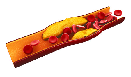 Illustration of blood cells with plaque buildup of cholesterol isolated white