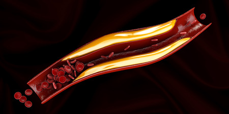 Artery with cholesterol buildup realistic Stock Photo