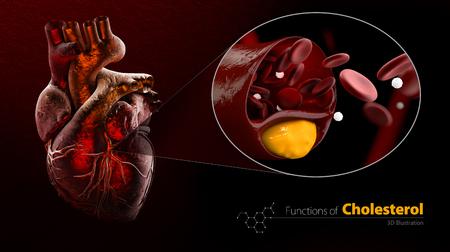 Heart as example, Blocked blood vessel, artery with cholesterol buildup, Illustration, isolated black Zdjęcie Seryjne