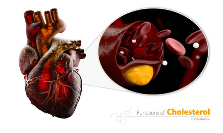 Heart as example, Blocked blood vessel, artery with cholesterol buildup, Illustration isolated white
