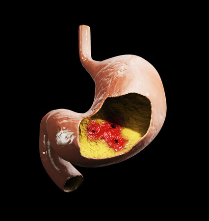 Peptic ulcer, 3d illustration of human stomach anatomy Stock Illustration - 82447874