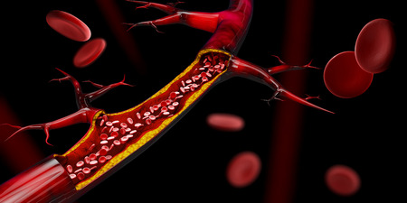 3d illustration of Blocked blood vessel - artery with cholesterol buildup realistic.