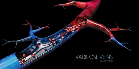 Disease varicose veins, 3d illustration isolated black.