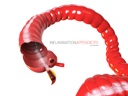 Inflammantion Appendicitis concept, human intestine anatomy as a 3D illustration Stock Photo