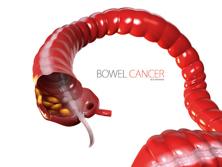 3d Illustration of Colorectal cancer, isolated white background