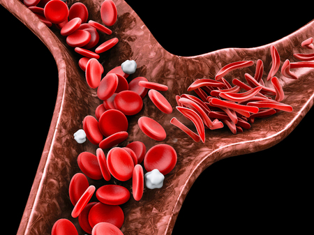 Sickle cell anemia, 3D illustration showing blood vessel with normal and deformed crescent. Stockfoto