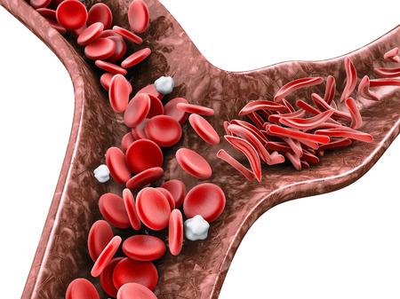 Sichelzellenanämie, 3D-Darstellung, die das Blutgefäß mit normalem und deformiertem Halbmond zeigt, isoliert weiß. Standard-Bild