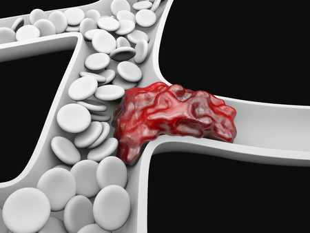 Tiefe Venenthrombose oder Blutgerinnsel. Embolie.