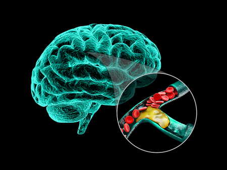 Human brain with cerebral sclerosis. Human brain anatomy 3d illustration. Stock Photo