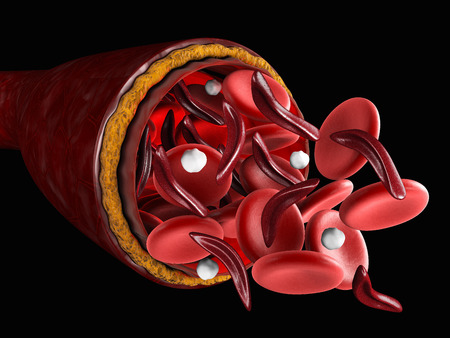 The difference of Normal red blood cell and sickle cell, 3d Illustration about medical