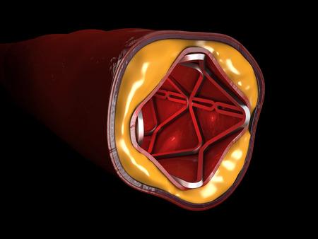 Heart Stent 3d Illustration isolated black background.