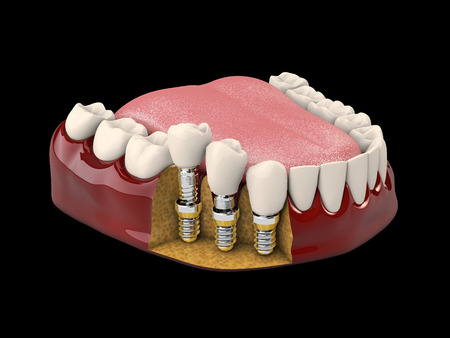 Human teeth and Dental implant, 3d illustration isolated black Banque d'images - 110131037