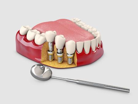 Human teeth and Dental implant. 3d illustration. Standard-Bild - 110130875