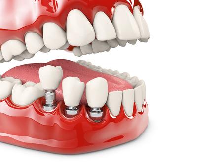 Human teeth and Dental implant. 3d illustration. Standard-Bild - 110130877
