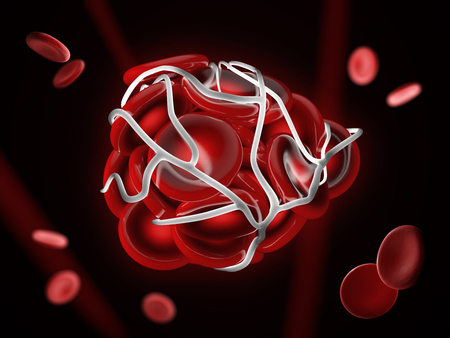 3d Illustration of illustration of a blood clot, thrombus or embolus with coagulated red blood cells. Stockfoto