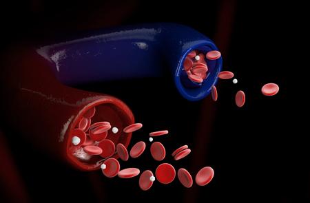 3d Illustration of varicose vein and normal vein, Varicose vein.