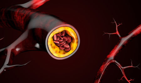 3d Illustration of blood cells with plaque buildup of cholesterol.