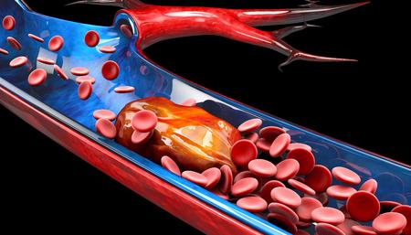 Ilustración 3d de trombosis venosa profunda o coágulos de sangre. Embolia