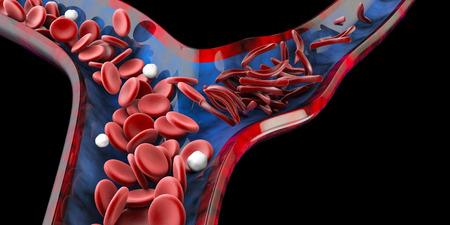 Sichelzellenanämie, Blutgefäß mit normalem und deformiertem Halbmond. 3D-Darstellung