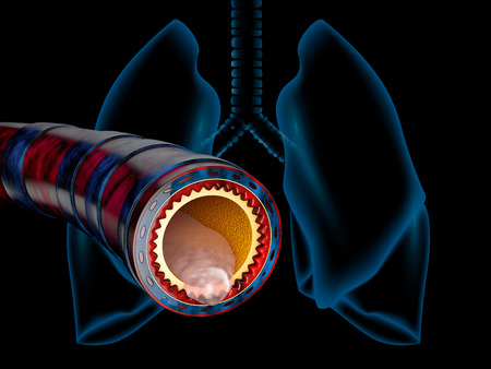 Bronchitis anatomy, mucus secreted as a chest cold as a 3D illustration Stock Photo
