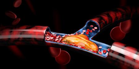 3D-Darstellung von tiefer Venenthrombose oder Blutgerinnseln, Embolie. Standard-Bild