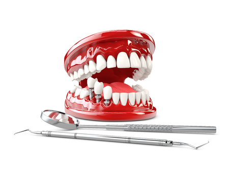 Tooth human implant. Dental concept 3d illustration