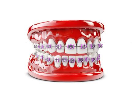 Teeth with brackets, Dental care concept 3d illustration Zdjęcie Seryjne