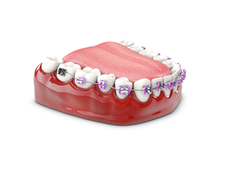 Teeth with brackets, Dental care concept 3d illustration Stock Photo