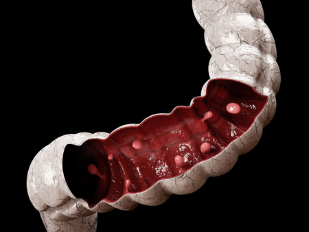 Colon polyps. 3d illustration, Polyp in the intestine. Stock Photo