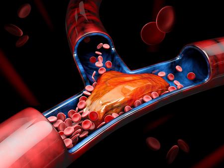 Illustration 3d de thrombose veineuse profonde ou de caillots sanguins. Embolie Banque d'images