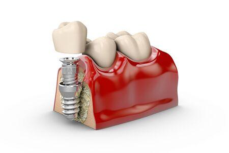 tooth dental implant model 3d illustration.