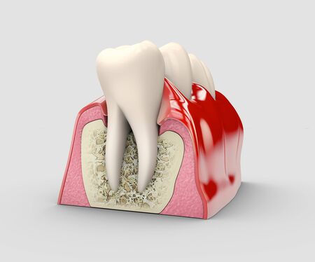 Human tooth, dental implant, stock 3d illustration. Stok Fotoğraf