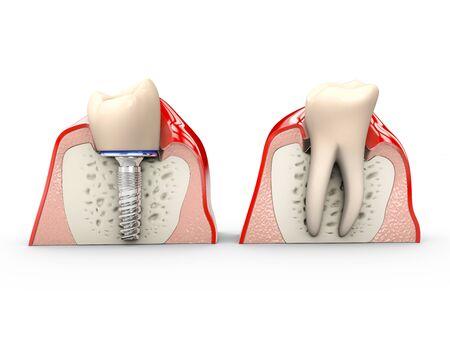 Human teeth and Dental implant 3d Illustration Stockfoto