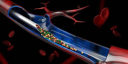 3d Illustration of Injection in the vein with vitamin. Stockfoto