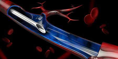 3d Illustration of Injection in the vein on black background