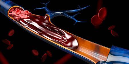3d illustrazione di trombosi venosa profonda o coaguli di sangue. Embolia