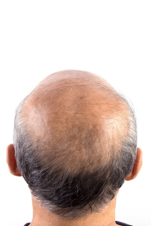 hair loss bald man isolated on white background Stock Photo