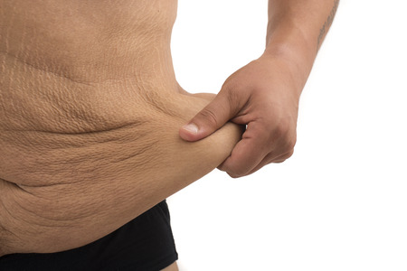 unhealthy diet: man with fat belly and stretch marks Stock Photo