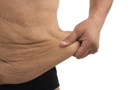 Mann mit dicken Bauch und Dehnungsstreifen