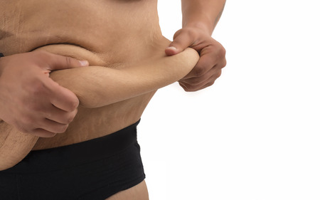 Mann mit dicken Bauch und Dehnungsstreifen Standard-Bild - 42078058