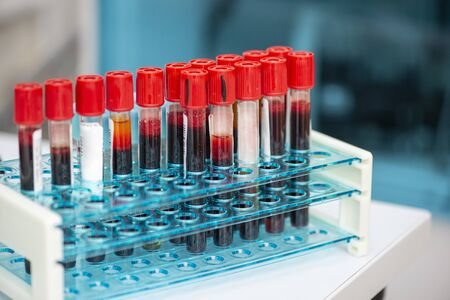 Tubes of blood sample for testing