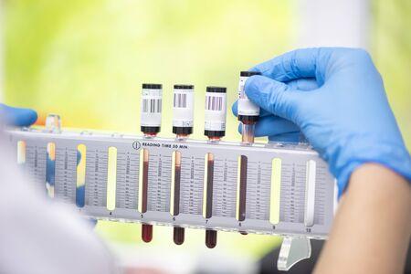Erythrocyte sedimentation rate test in laboratory