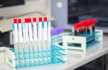 Sterile Teströhrchen zur Probenentnahme bei Halskrankheiten